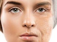 چرا گرد پیری زودتر بر چهره زنان مینشیند؟