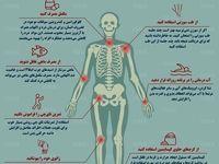 ۷ راه مناسب برای کاهش درد مفاصل +اینفوگرافیک