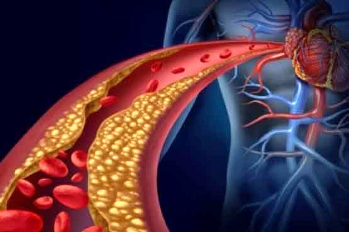 دلایل و عوامل خطر برای لختههای خون