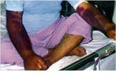ابتلای یک نفر به تب کریمه کنگو در استان هرمزگان