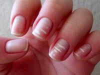 چرا روی ناخن لکههای سفید ایجاد میشود؟