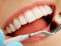 محصولات سفیدکننده به دندانها آسیب میزنند؟